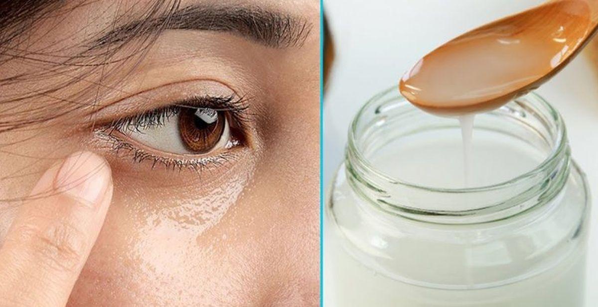 top 5 best coconut oils for face wrinkles